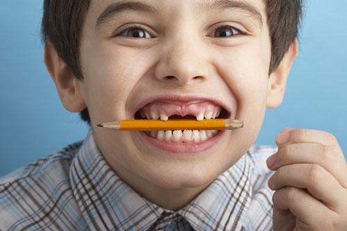 Nguyên nhân răng mọc chen chúc và hướng khắc phục