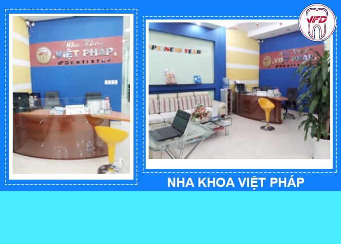 nha-khoa-viet-phap-4
