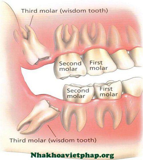 Nhổ răng khôn bao nhiêu tiền ?