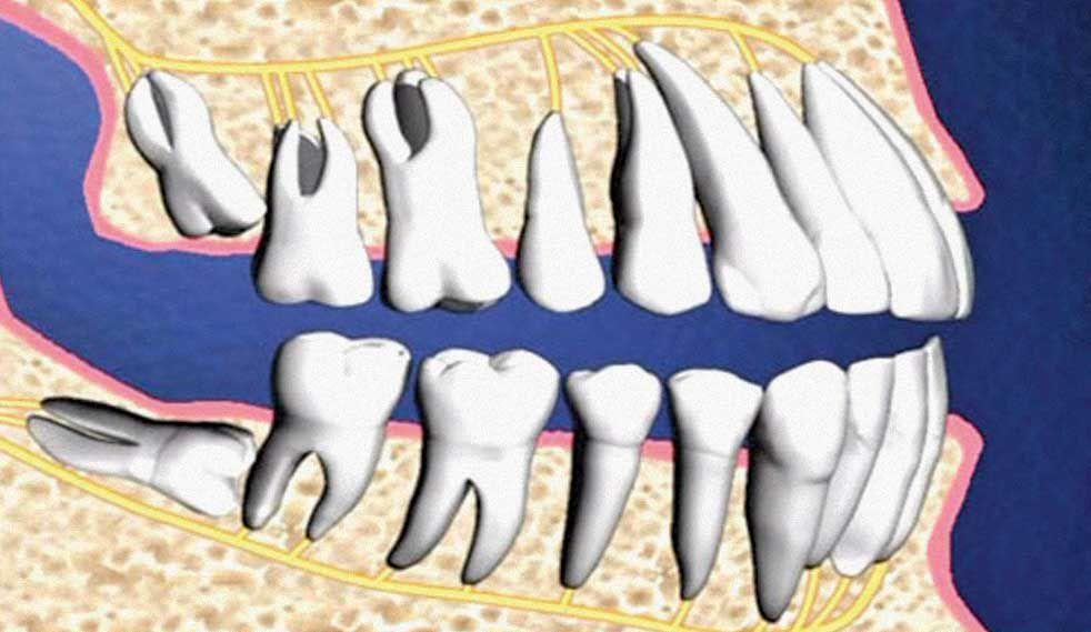 Nhổ răng khôn cần chú ý điều gì?