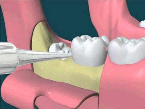 Nhổ răng khôn có đau không ?