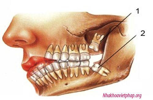 Nhổ răng khôn hàm trên mọc lệch