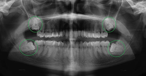 Nhổ răng khôn xong phải làm gì ?