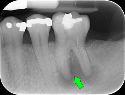 Nhổ răng hàm nhiễm trùng