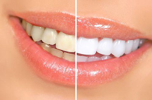 Những lưu ý trước và sau khi tẩy trắng răng