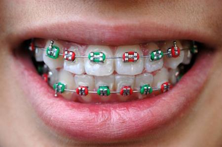 Những thắc mắc nhỏ trước khi đi niềng răng