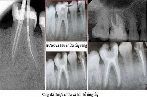 Những thắc mắc thường gặp trong điều trị tủy răng