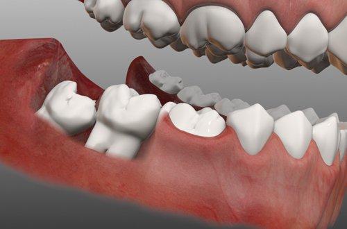 Những trường hợp hay gặp khi nhổ răng khôn