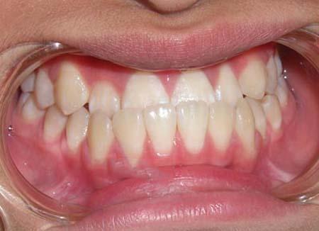 Niềng 4 răng cửa giá bao nhiêu ?