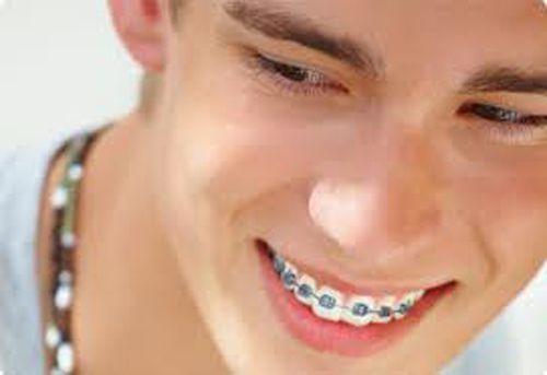 Niềng răng 1 hàm giá bao nhiêu ?