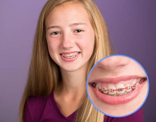 Niềng răng có ảnh hưởng gì không ?