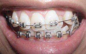niềng răng hô nướu