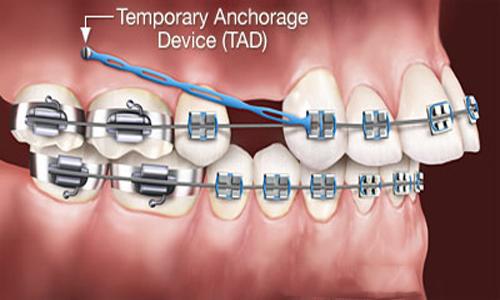 Niềng răng hô thời gian bao lâu ?