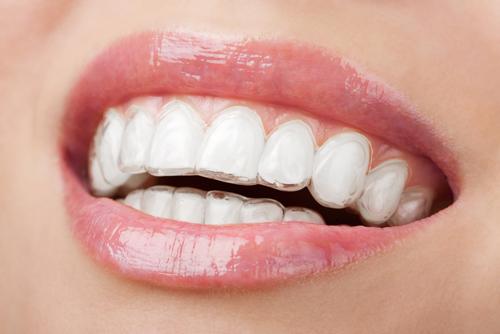 Niềng răng invisalign có đau không ?