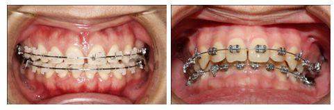 Niềng răng không cần nhổ răng