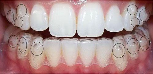 Niềng răng không mắc cài clear aligner
