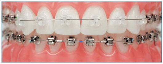 Niềng răng mang mắc cài bao lâu ?