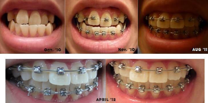 niềng răng móm nha khoa đăng lưu