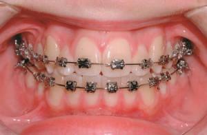 Niềng răng một hàm có được không ?