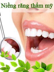Niềng răng thẩm mỹ nha khoa Việt Pháp
