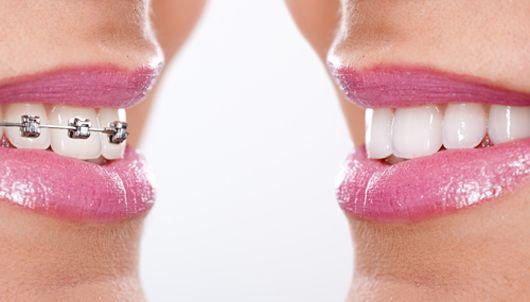 Niềng răng tháo lắp giá bao nhiêu ?
