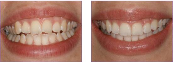 Niềng răng xong đẹp cỡ nào?
