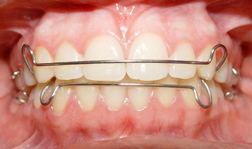 Phải mang khí cụ duy trì sau niềng răng trong bao lâu?