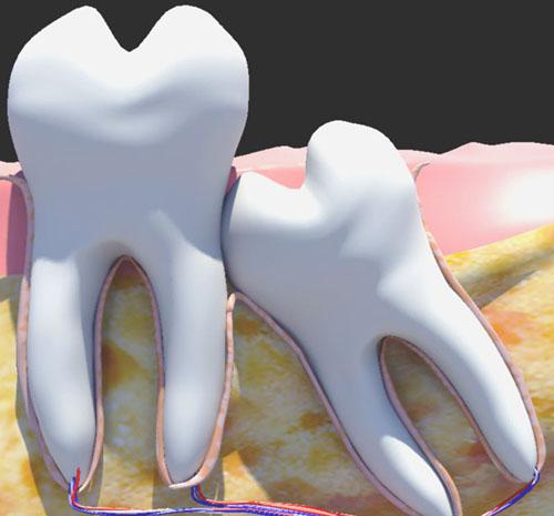 Phương pháp nhổ răng khôn không gây đau