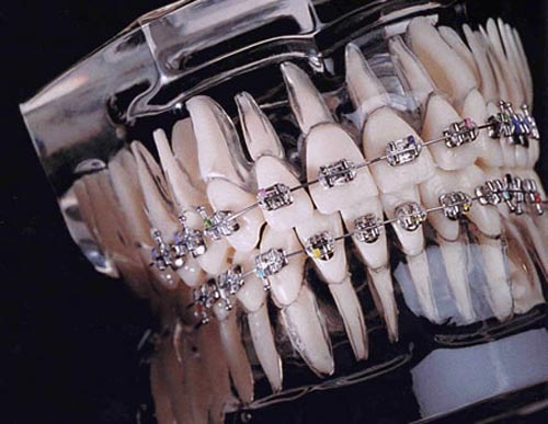 Phương pháp niềng răng hô có đau không ?