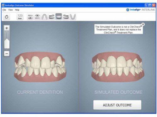 Phương pháp niềng răng invisalign tại Việt Nam