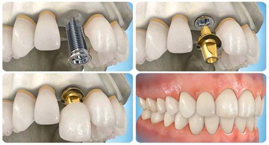 Phương pháp trồng răng giả cố định hiệu quả nhất