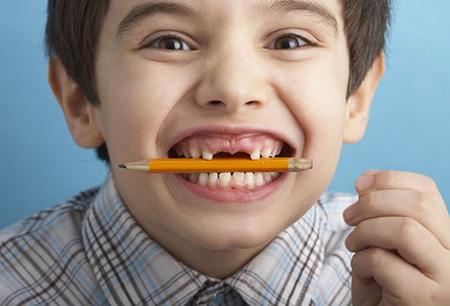 Quá trình mọc răng vĩnh viễn ở trẻ