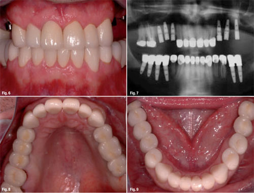 Quy trình cấy ghép răng implant hiệu quả