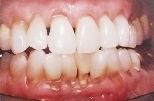 Răng bị mòn điều trị như thế nào