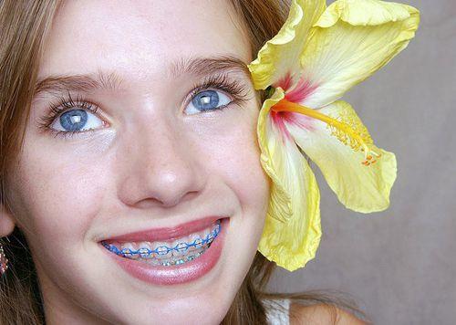 Răng bị sâu có niềng răng được không?