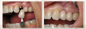 Răng gãy vỡ lớn