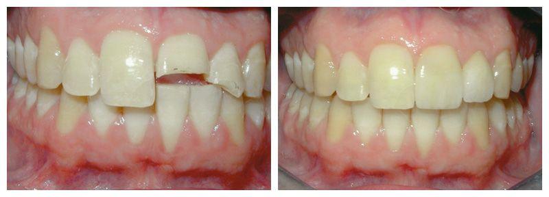 Làm gì khi răng bị gãy vỡ