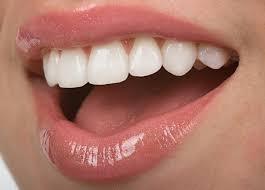 Khi răng hô nhẹ nên niềng răng hay bọc sứ?