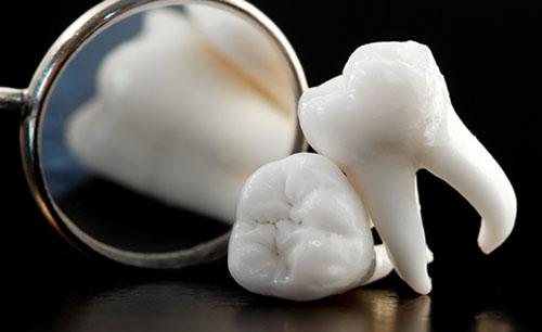 Răng khôn bao giờ mới mọc ?