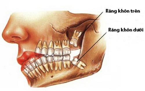 Răng khôn hàm trên mọc lệch phải làm sao ?