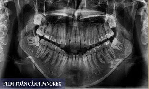 Răng khôn là răng gì ?