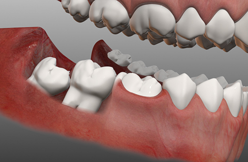 Răng khôn là răng nằm ở vị trí số mấy ?