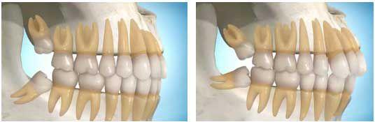 Răng khôn và cách xử lý