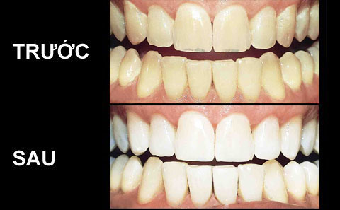 Răng sứ có tẩy trắng được không ?