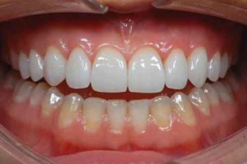 Răng sứ không kim loại có đẹp không?