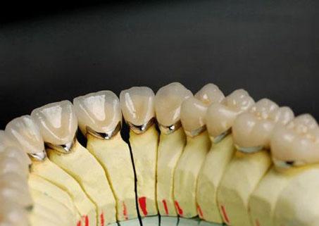 Bọc răng sứ kim loại thường có tốt không ?