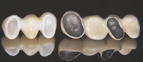Image result for Răng sứ kim loại