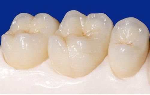 Răng sứ bị mẻ, vỡ phải làm sao?