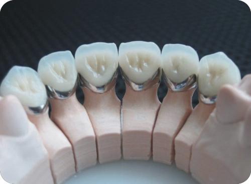 Răng sứ titan là gì ?