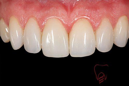 Trồng răng sứ mất bao lâu?